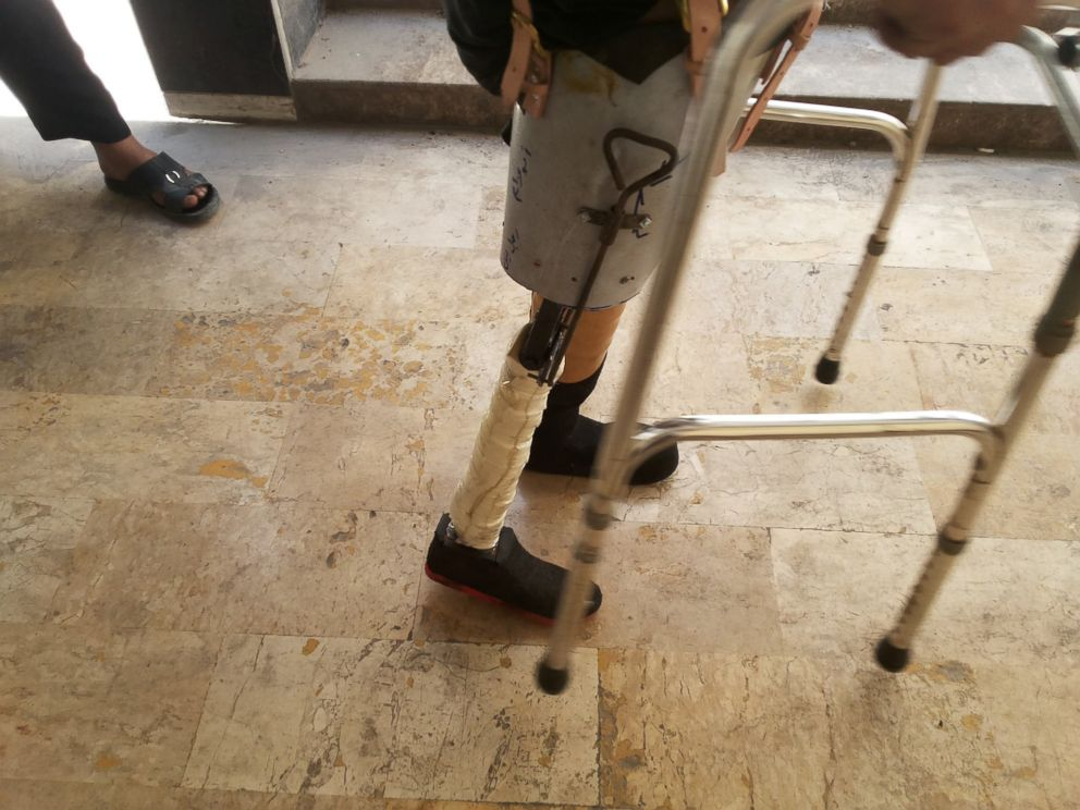 PHOTO: Handmade prosthetics like these are allowing locals to walk again. / Ahmad Khalil for Syria Deeply
