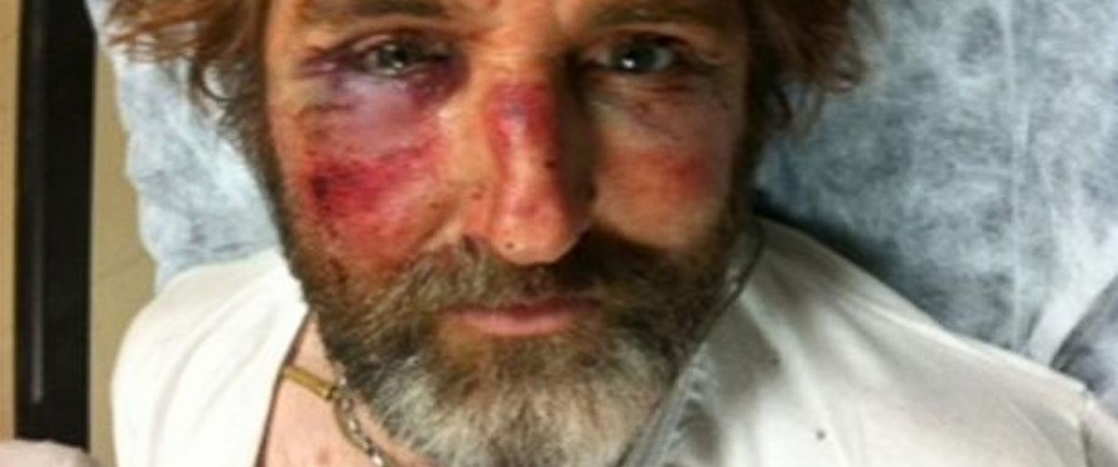 PHOTO: Anthony Loyd, visibly bruised, recovers in a hospital in Turkey