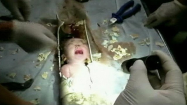 VIDEO: Rescue workers in China saved the infant after sawing through a sewage pipe.
