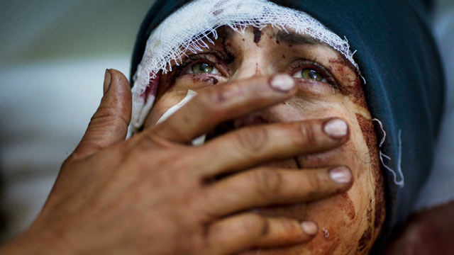 PHOTO: Aida cries as she recovers from severe injuries after the Syrian Army shelled her house in Idlib, north Syria.