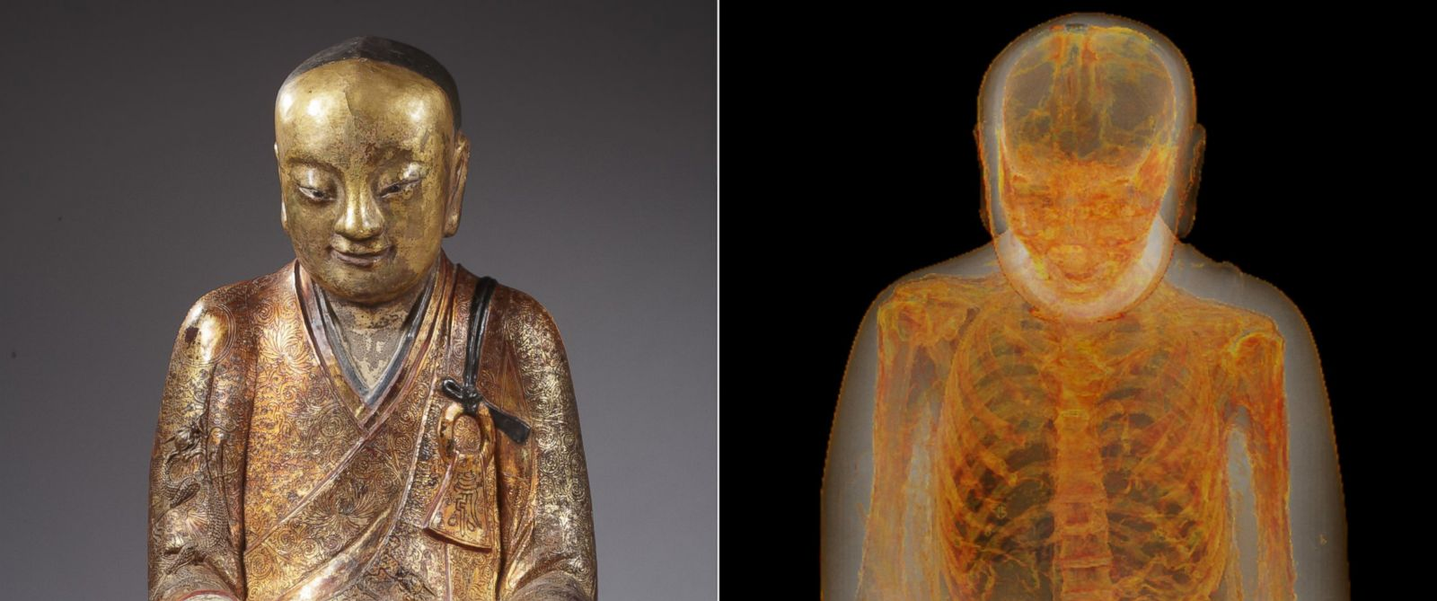 PHOTO: A mummy was discovered inside a statue of Buddha.
