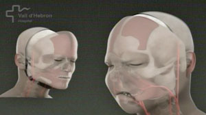 Spanish hospital says it has carried out the worlds first full-face transplant.