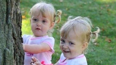 PHOTO: Allison June and Amelia Lee Tucker are now happy and healthy sisters who share crackers and push each other around in a stroller, but the two spent half of their young lives as one, conjoined at the chest and abdomen.