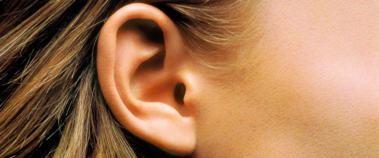 PHOTO: Take years off your ears.