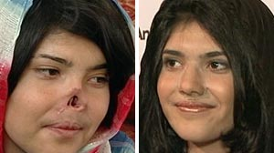 """Bibi"" Ayesha: (L) Afghanistan woman whose nose was cut off by her Taliban husband (R) Ayesha attends the Grossman Burn Foundations Art of Humanity Gala at the SLS Hotel on Oct. 8, 2010 in Beverly Hills, California"