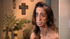 Lizzie Velasquez on Turning a Life of Bullying into Powerful Motivation