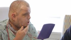VIDEO: Face Transplant Patient Sees Himself for the First Time Post-Surgery