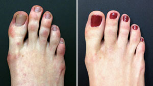 Photo: Are Toes the New Nose?