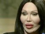 VIDEO: Pete Burns interview on plastic surgery