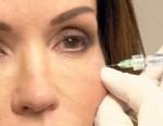 VIDEO: Janice Dickinson talks about Plastic Surgery