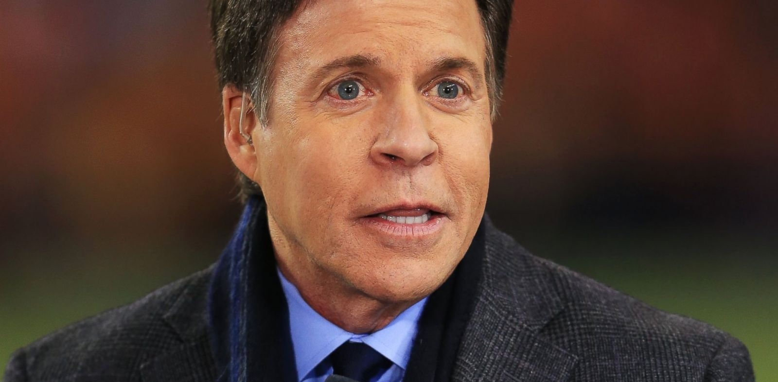 PHOTO: NBC broadcaster Bob Costas now has an infection in both of his eyes, sparking humor from Costas, and a range of internet reaction