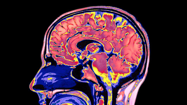 PHOTO: Researchers report new findings on how the human brain retains what is most important, and avoids being overwhelmed by trivia.