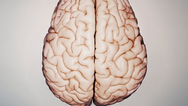 PHOTO: Model of a human brain