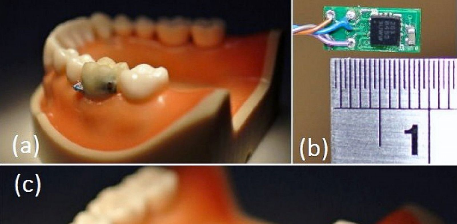 PHOTO: Tooth sensor