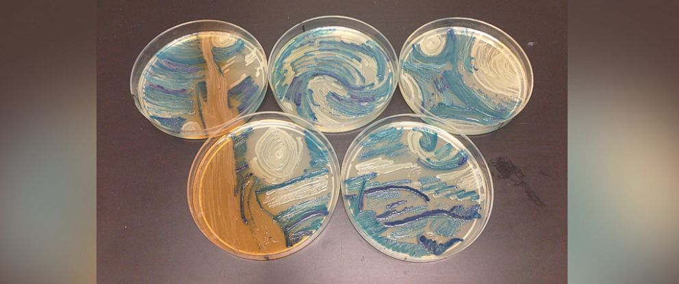 "PHOTO: Microbiologist Melanie Sullivan of Missouri recreated Vincent van Goghs ""The Starry Night"" for the American Society of Microbiologys 2015 Agar Art Contest."