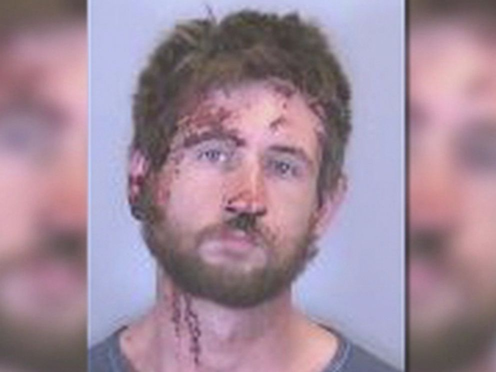 PHOTO: Anthony Nemeth, 26, of Bradenton, Florida, is pictured here in a booking photo from Manatee County Jail.