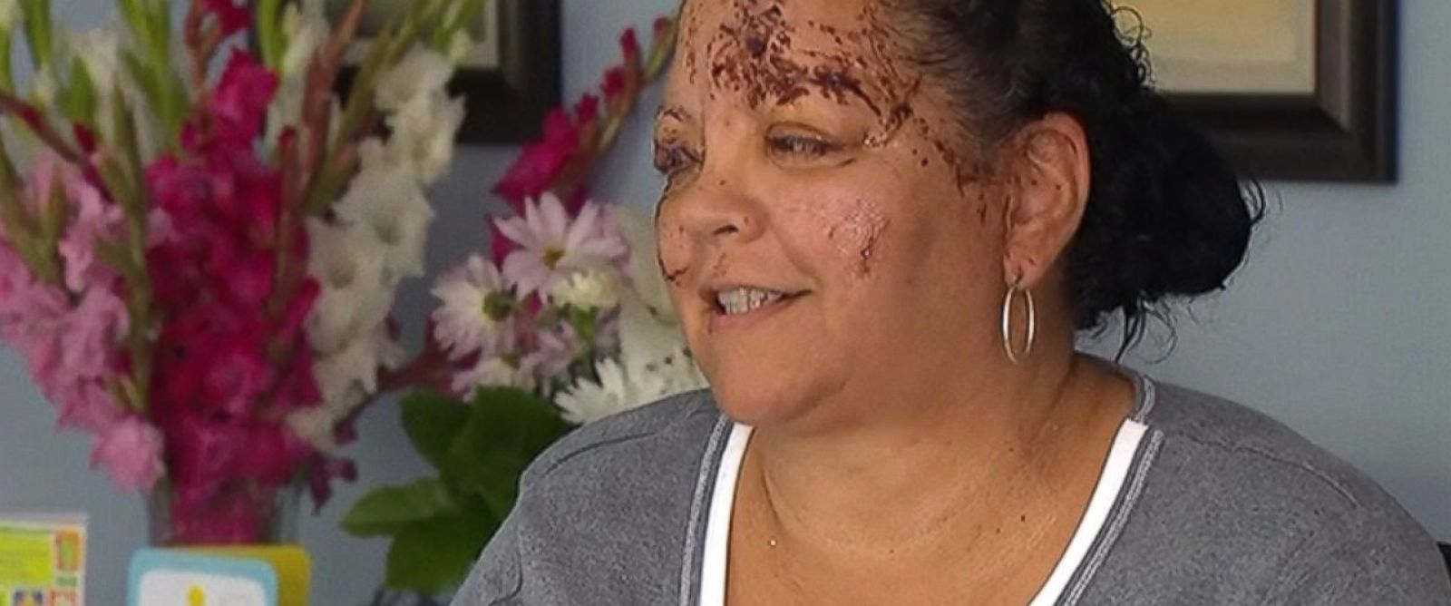 PHOTO: A Washington grandmother and grandson were attacked by an otter while swimming in a watering hole.