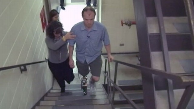 VIDEO: Doctors prepare stair climbing test for patients new artificial limb.
