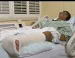 PHOTO: Mike Adler, 16, recovers in a Florida hospital after fending off a shark attack.