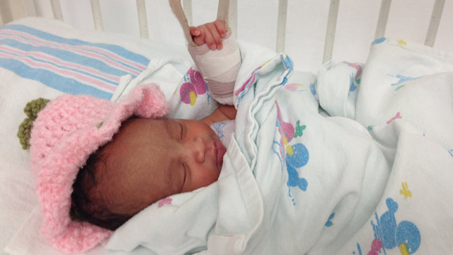 PHOTO: Skyla Davis was in her mothers womb when a bullet shot by a gang member entered the womans abdomen and shattered the 4-pound baby girls arm and elbow.