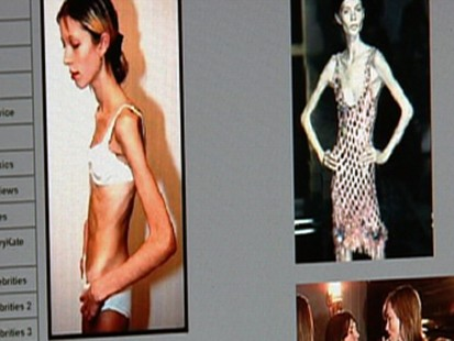 Pro-Anorexia Sites Deadly Messages