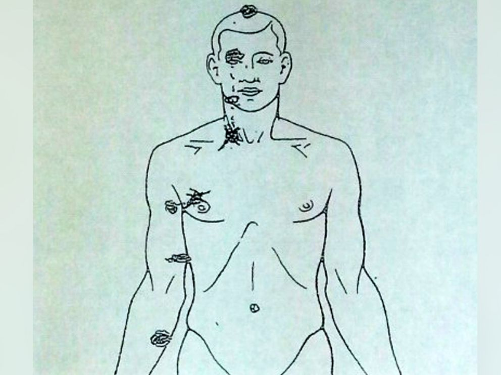 PHOTO: A diagram from a private autopsy, released Aug. 17, 2014, shows where Michael Brown, 18, was shot.