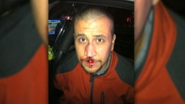 VIDEO: Defense for Zimmerman believe photo creates doubt in murder case involving Trayvon Martin.