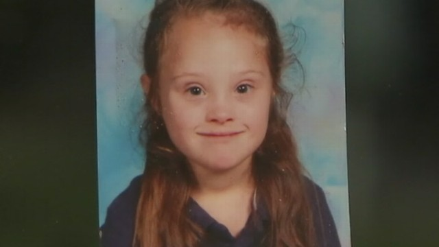 VIDEO: Mother of 7-year-old with Down syndrome says the school gave conflicting reasons for cutting the hair.