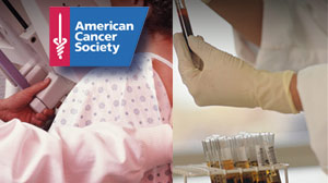 Cancer Society Catches Heat for Breast, Prostate Cancer Screening Criticism Top ACS Officials Statements on Some Cancer Tests Has Docs Locked in Debate