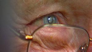 Bionic Sight: FDA OKs Telescope Eye Implant
