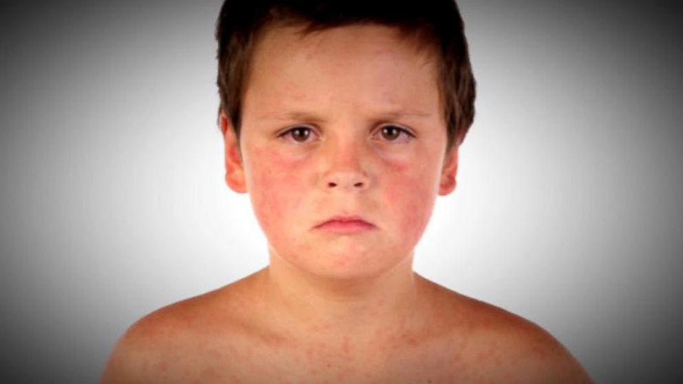 VIDEO: Measles Outbreak in 13 States