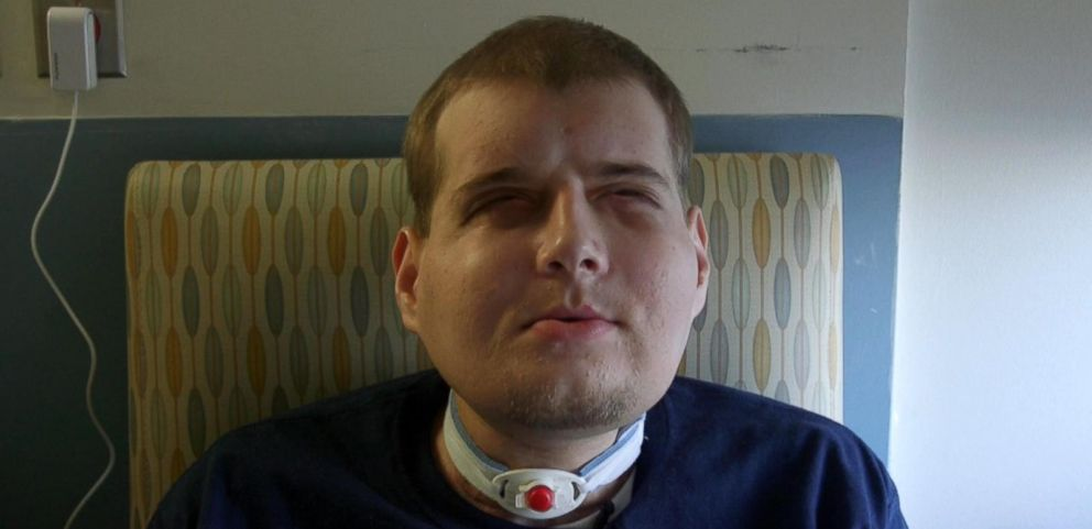 VIDEO: Firefighter Who Received a Face Transplant Smiles