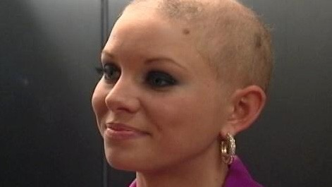 VIDEO: Miss America contestant not letting hair loss stop her quest for the crown.