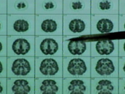 VIDEO: A Look at Alzheimers Disease