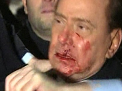 VIDEO: Did Silvio Berlusconi Deserve to Be Attacked?