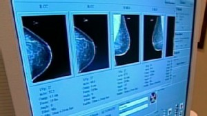Dimpling Skin Could Be A Sign Of Breast Cancer Video Abc