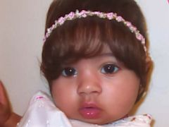 Baby Wigs For Bald Babies Abc News