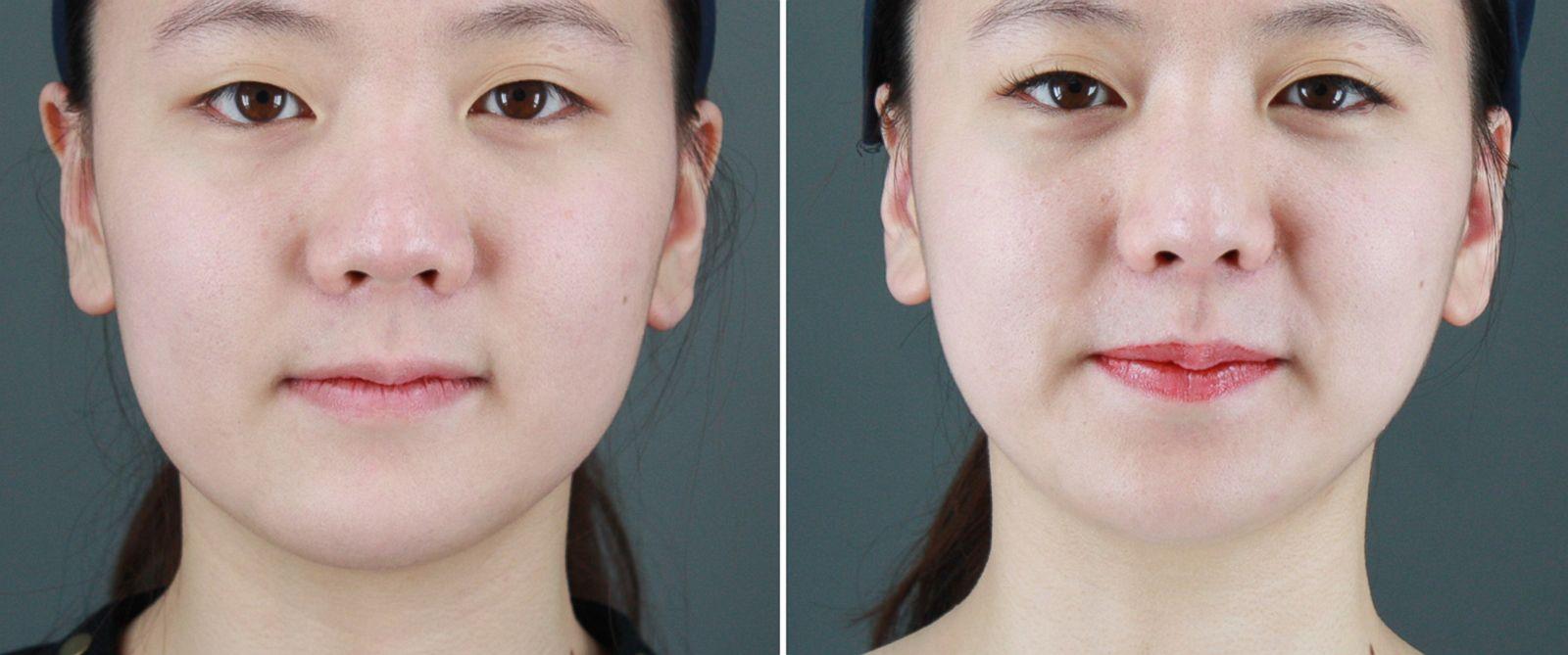 Facial plastic surgery procedures think, that