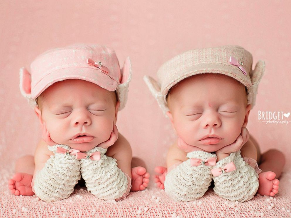 infant twins share heartbreaking cancer diagnosis abc news. Black Bedroom Furniture Sets. Home Design Ideas